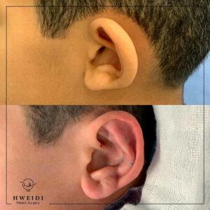 الأذن الوطواطية