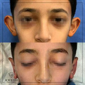 جراحة الأذن الوطواطية